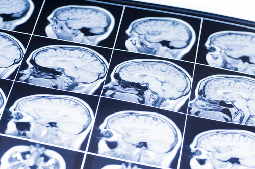 Signs of a Good Brain Injury Law Attorney in Maryland and Washington D.C.